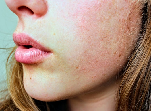 How to face the cold with atopic dermatitis?
